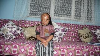 Bebekken yüzü yanan 5 yaşındaki Dilara ameliyat olmak için yardım bekliyor